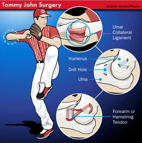 Tommy Johns Surgery Details